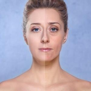 Anti Aging Treatment Services