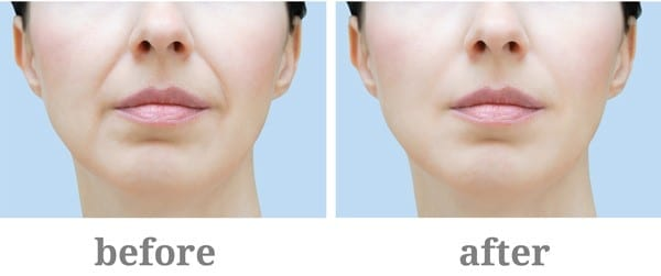 Restylane Before After