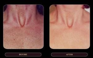 Brown Spot Removal side by side comparison
