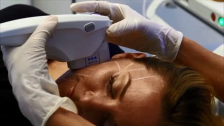 ultherapy treatment being applied to areas on the face