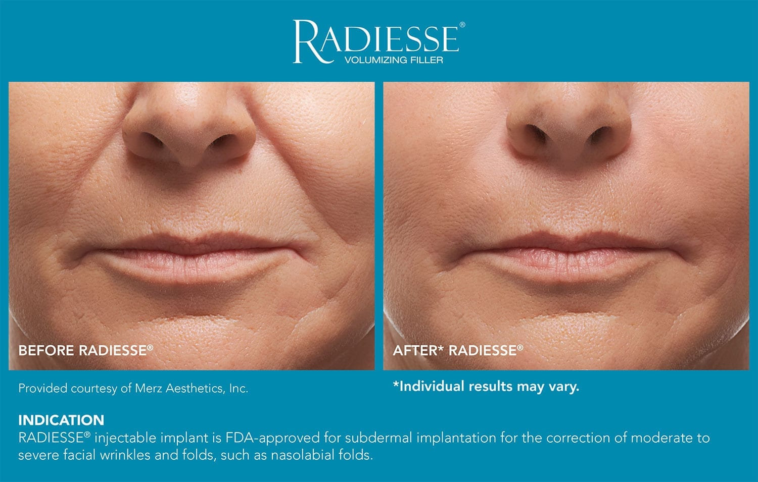 Side by side comparison of nose and lips - New Image Med Spa