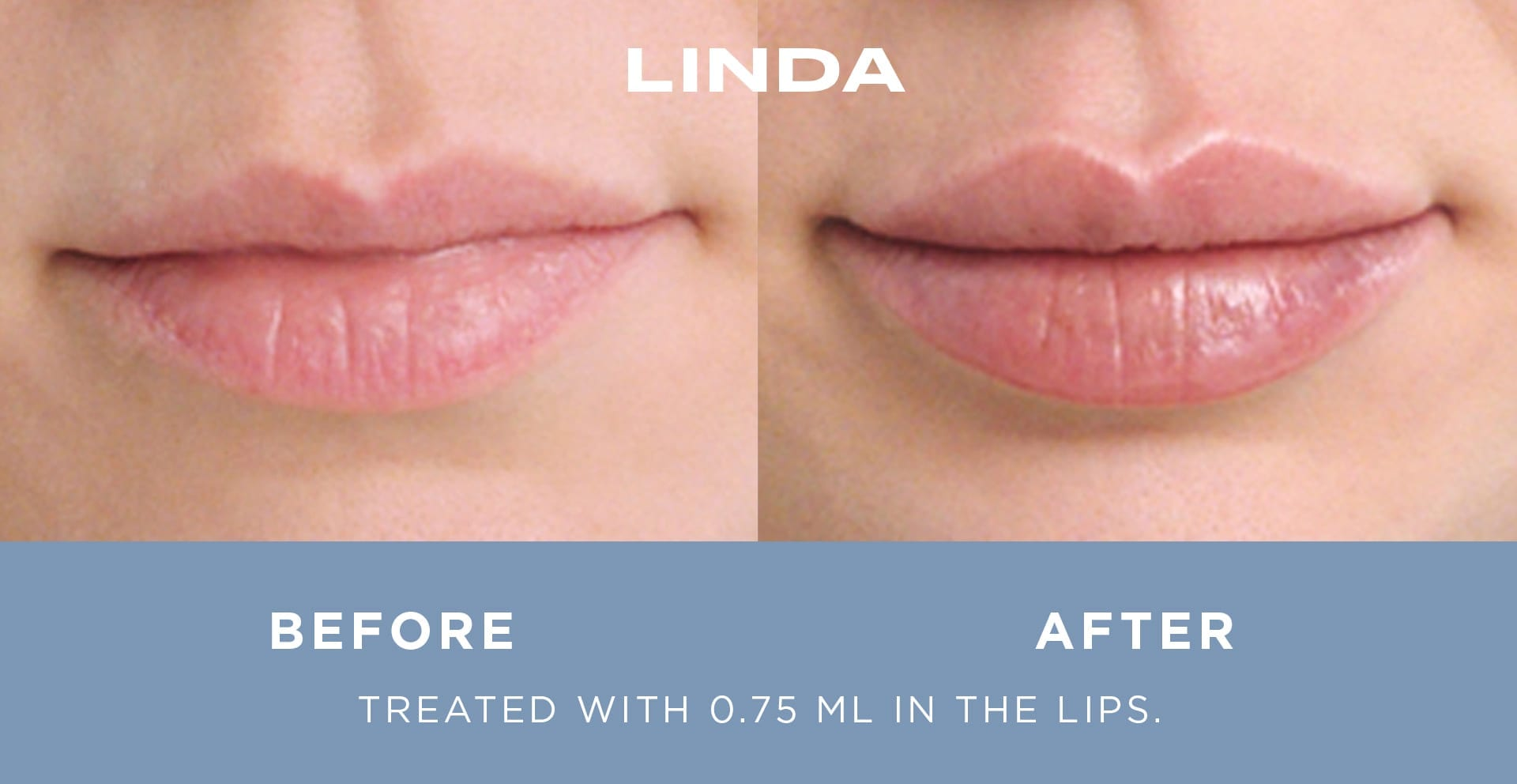 Side by side comparison of woman's lips